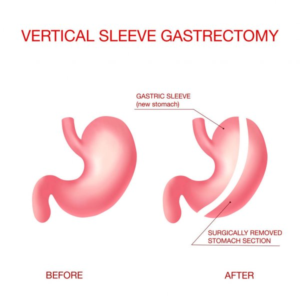 diagram of the before and after of a vertical sleeve gastrectomy